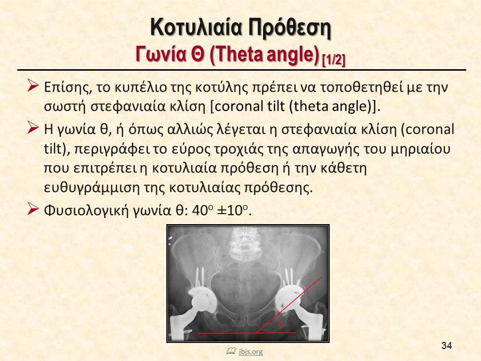 Κοτυλιαία Πρόθεση Γωνία Θ (Theta angle) [2/2]